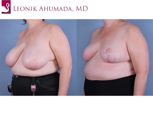 Female Breast Reduction Case #64819 (Image 2)