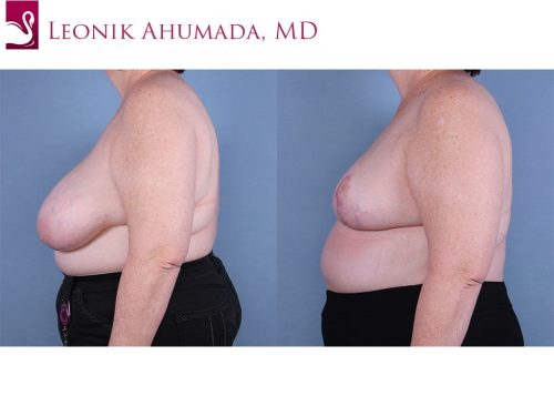 Female Breast Reduction Case #64819 (Image 3)