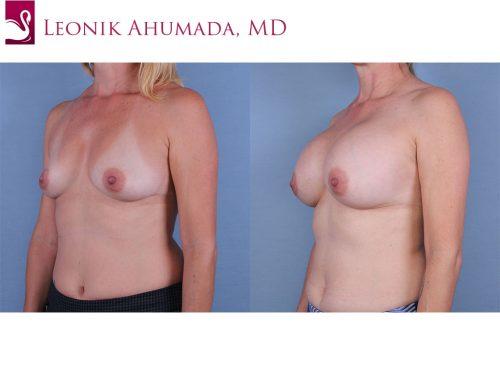 Breast Augmentation Case #63039 (Image 2)