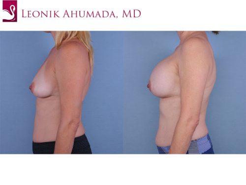 Breast Augmentation Case #63039 (Image 3)