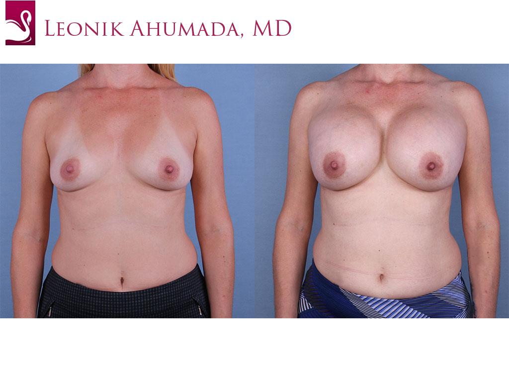 Breast Augmentation Case #63039 (Image 1)