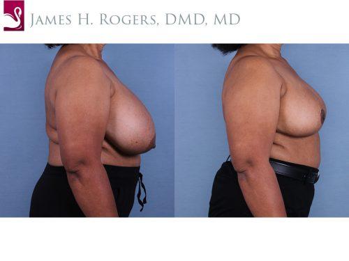 Female Breast Reduction Case #10899 (Image 3)