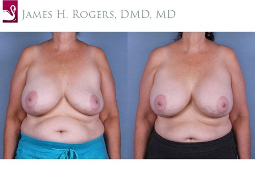 Before and after image of a real plastic surgery procedure performed by Dr. Rogers.