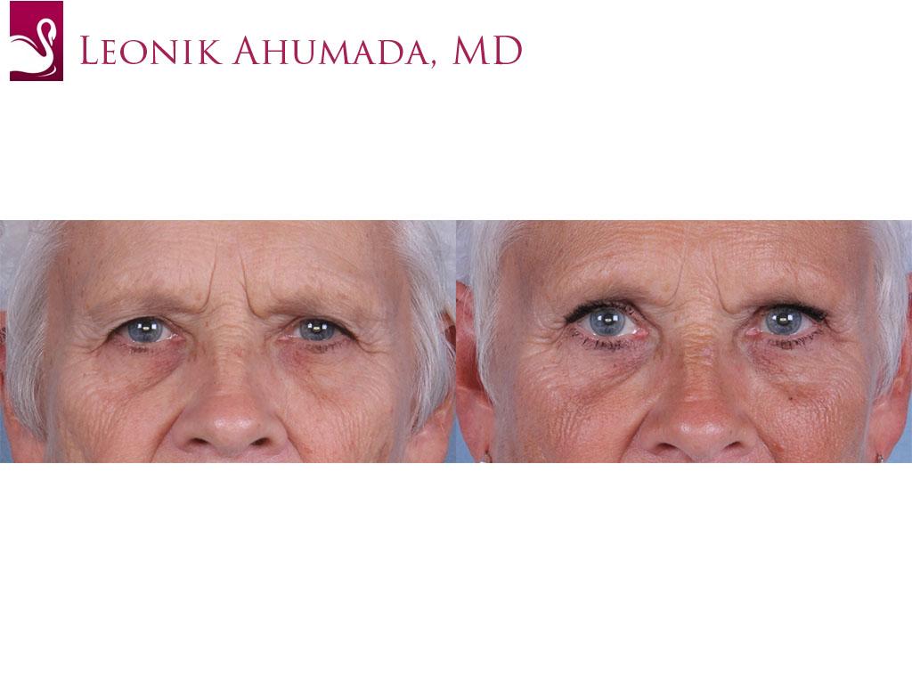 Eyelid Surgery Case #66302 (Image 1)
