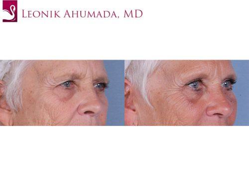 Eyelid Surgery Case #66302 (Image 2)