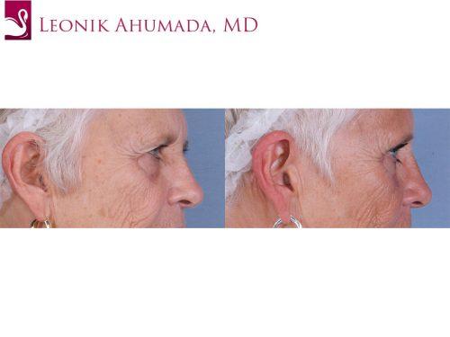 Eyelid Surgery Case #66302 (Image 3)