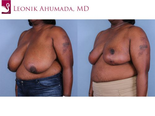 Female Breast Reduction Case #64590 (Image 2)