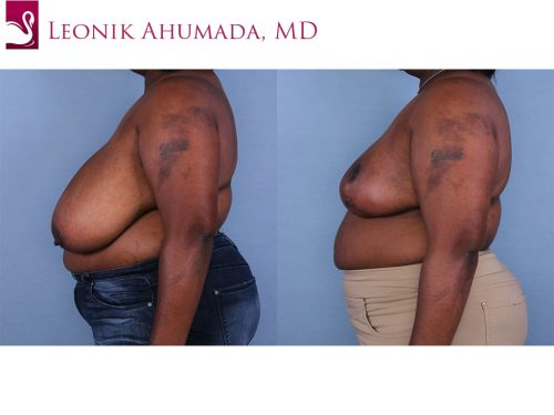 Female Breast Reduction Case #64590 (Image 3)