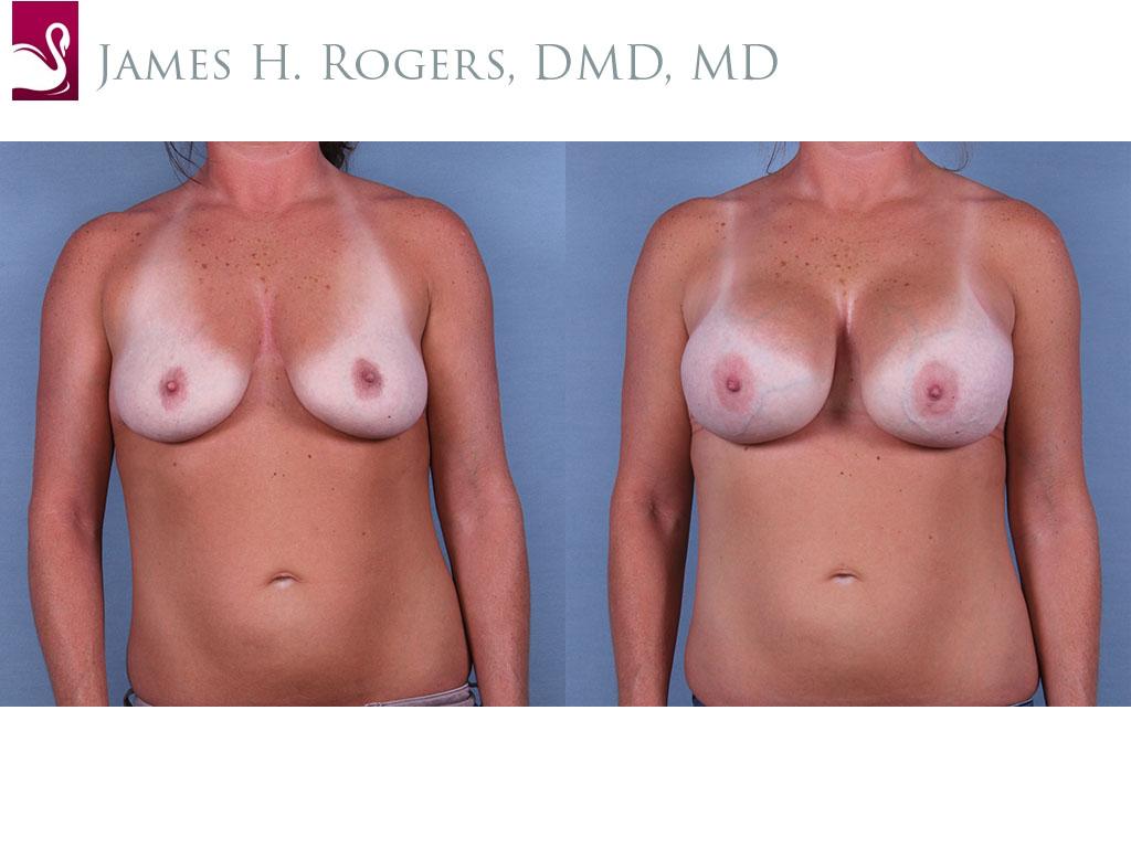Breast Augmentation Case #64936 (Image 1)
