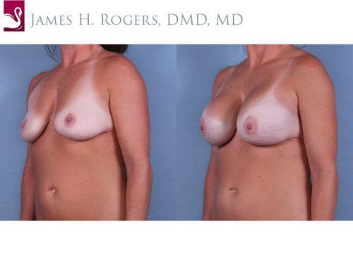 Breast Augmentation Case #64936 (Image 2)