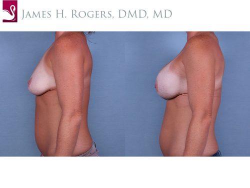 Breast Augmentation Case #64936 (Image 3)