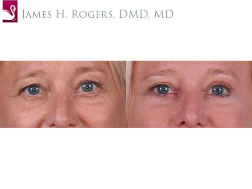 Eyelid Surgery Case #66077 (Image 1)