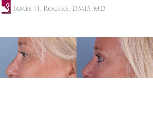 Eyelid Surgery Case #66077 (Image 3)