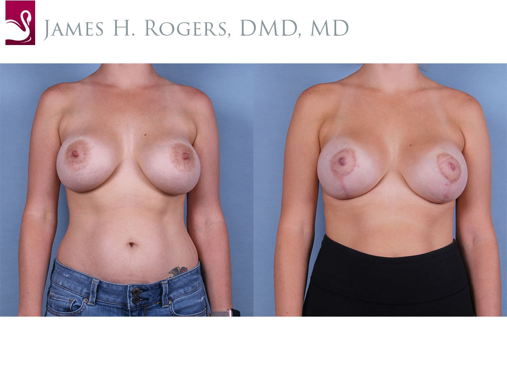 Breast Lift (Mastopexy) Case #53251 (Image 1)