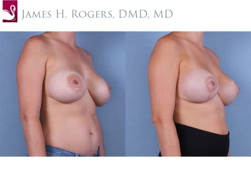Breast Lift (Mastopexy) Case #53251 (Image 2)