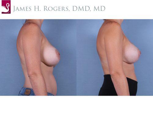 Breast Lift (Mastopexy) Case #53251 (Image 3)