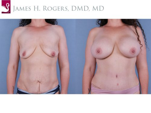 Breast Augmentation Case #67179 (Image 1)