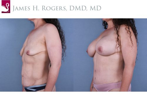 Breast Augmentation Case #67179 (Image 2)