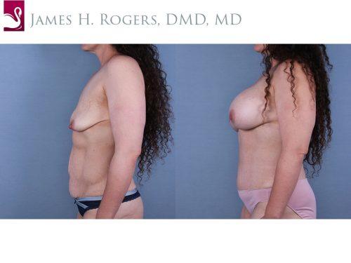 Breast Augmentation Case #67179 (Image 3)